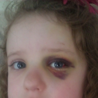 Alexis Hoskey was hit with a foul ball during a Royals game in 2011   COURTESY OF MONTE HOSKEY